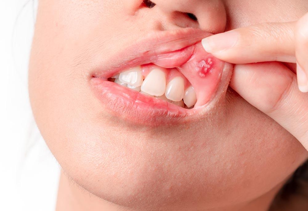 Problemi di after? Studio dentistisco Amosso a Biella