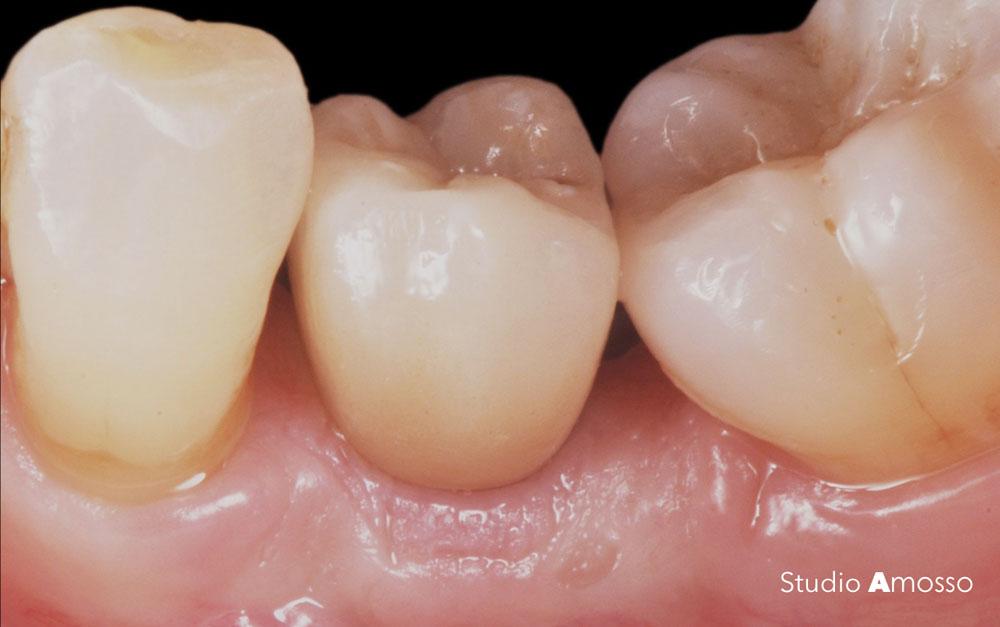 Caso clinico di implantologia dentistica