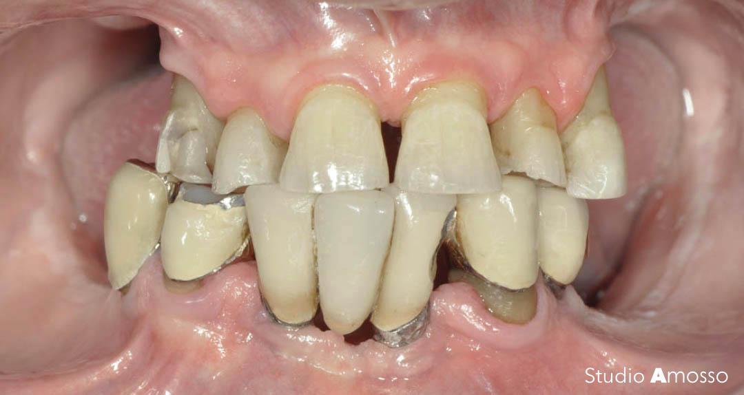 Caso clinico: implantologia dentale