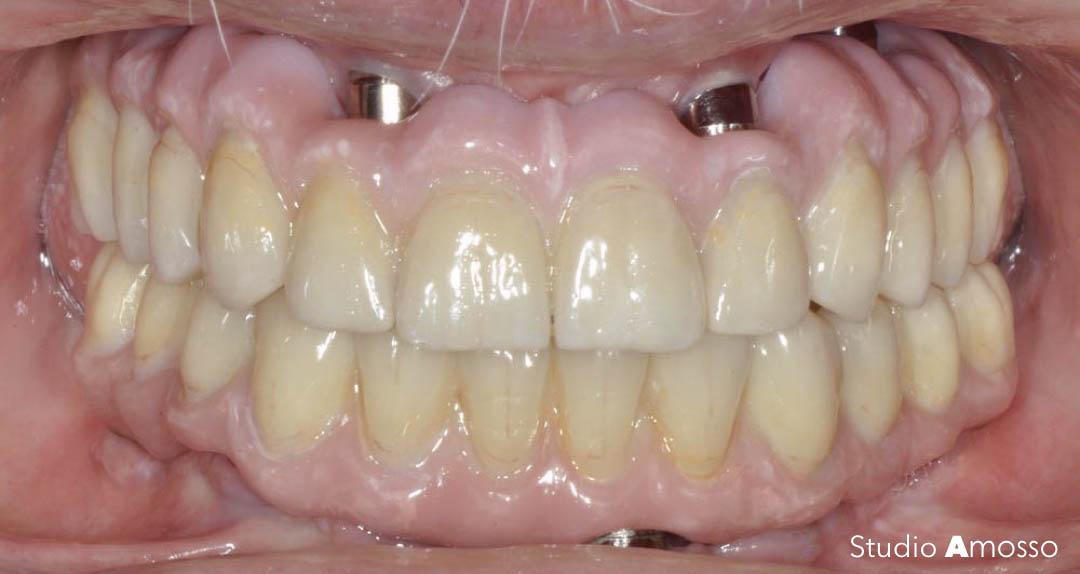 Caso clinico: implantologia
