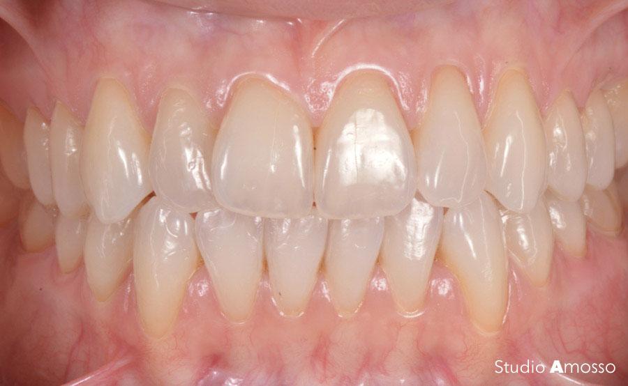 Caso clinico prima e dopo: sbiancamento dentale a Biella