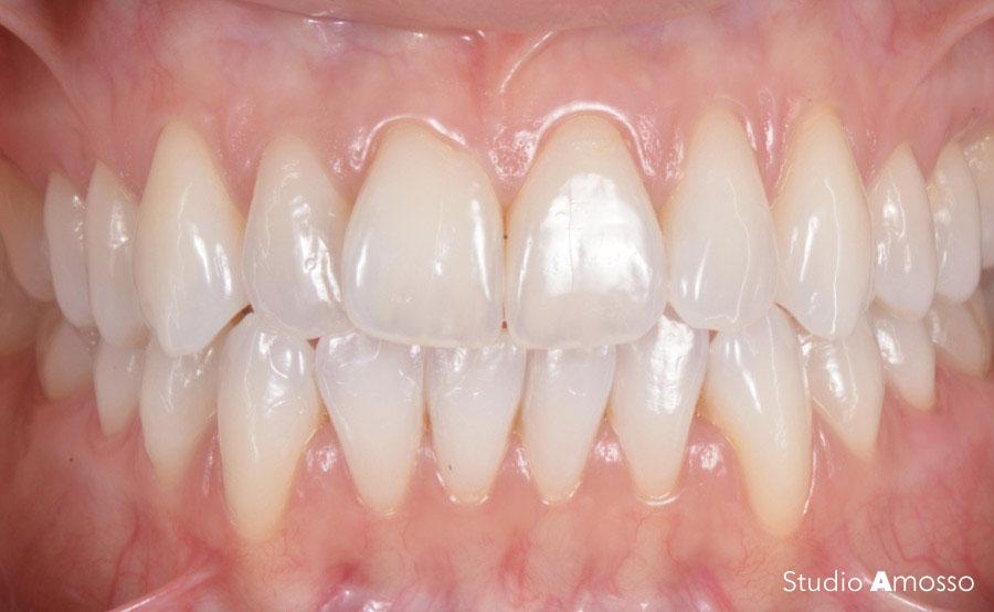 Caso clinico denti bianchi dopo sbiancamento