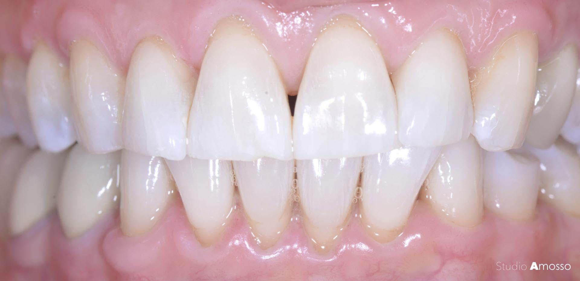 Caso clinico: sbiancamento dentale