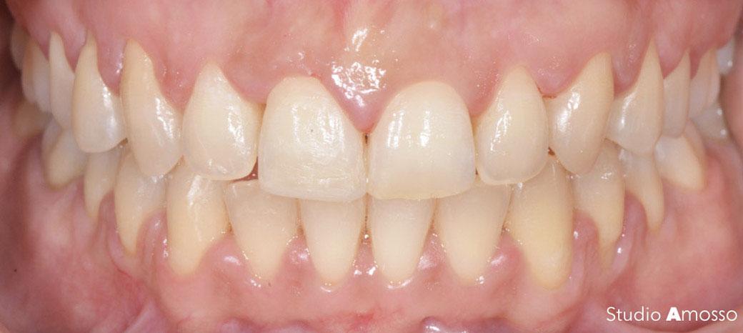 Caso clinico di sbiancamento dentale prima e dopo