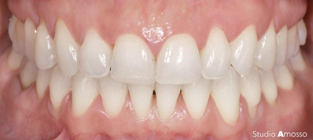 Caso clinico di sbiancamento dentale a Biella