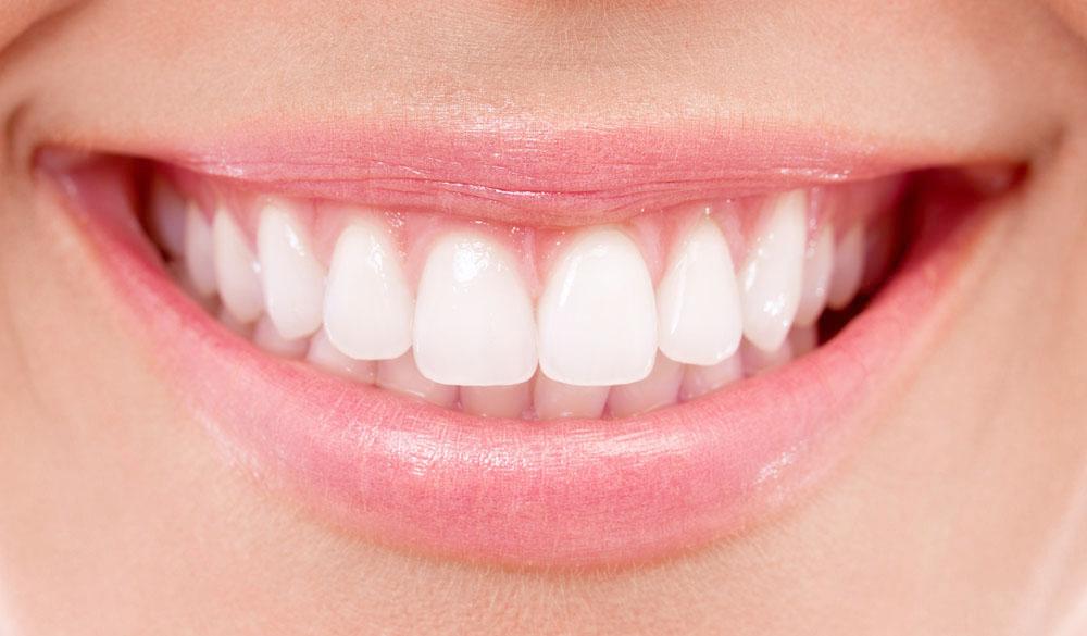 Denti bianchi studio amosso Biella