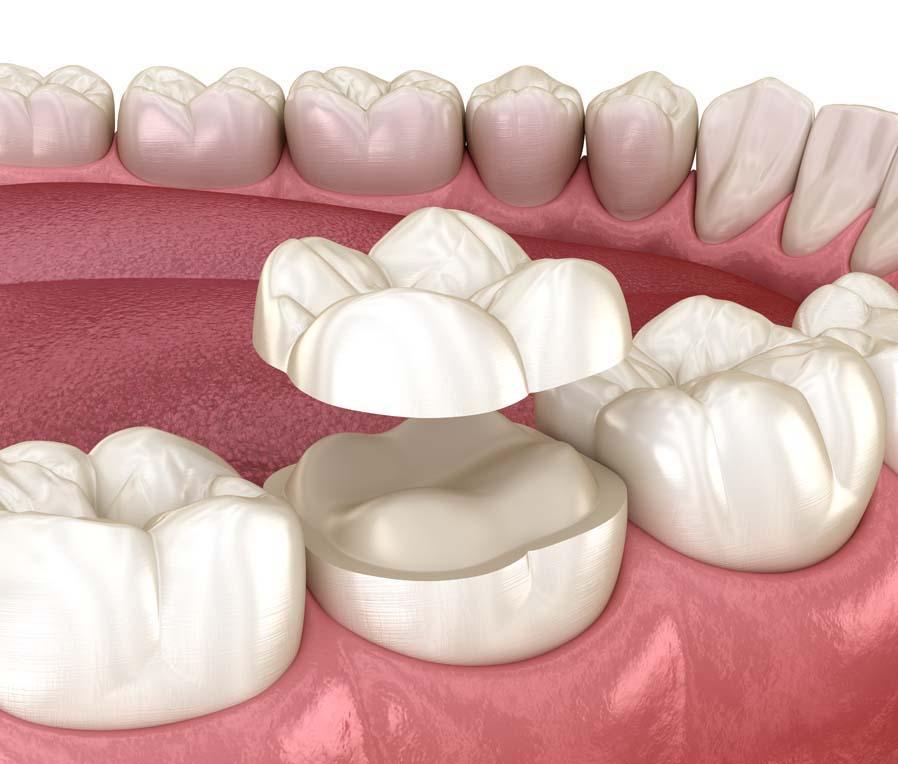 Intarsi dentali Studio Amosso a Biella