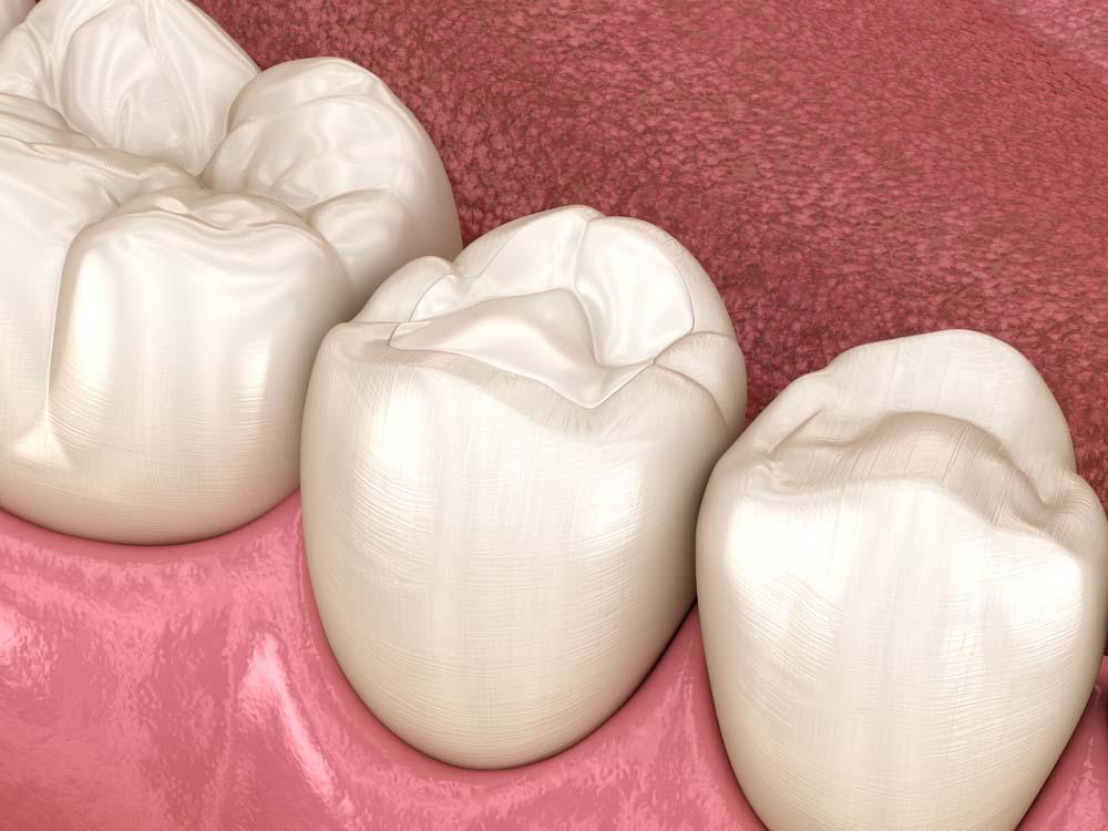 Servizio di otturazione denti a Biella