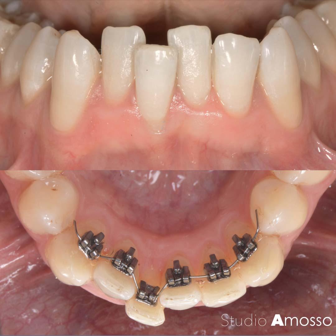 Ortodonzia linguale - apparecchio interno denti